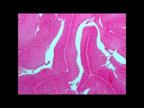 Cervical cancer esmo