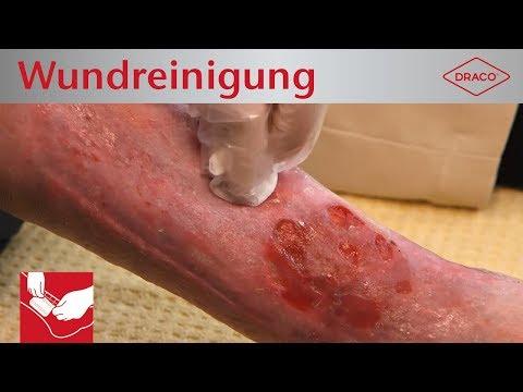 DRACO | Verbandwechsel: Wundreinigung