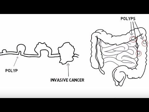 Hpv positive bladder cancer