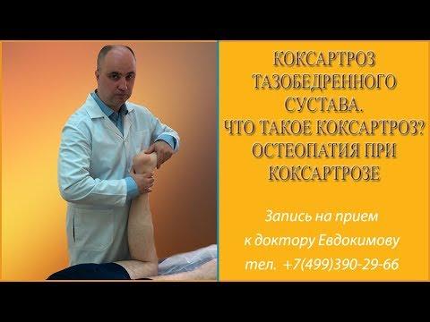 Коксартроз тазобедренного сустава. Что такое коксартроз? Остеопатия при коксартрозе