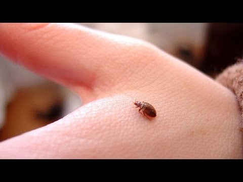 Video ☀What Causes Scabies, How To Kill Scabies On Bedding, How To Treat Scabies At Home, Scabies Pics