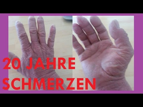 Diabetes-Patienten, was allergisch