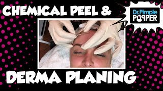 Esthetician Services: Jacki doing a chemical peel and derma planing