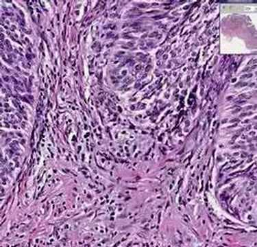 Herpes hpv cervical cancer