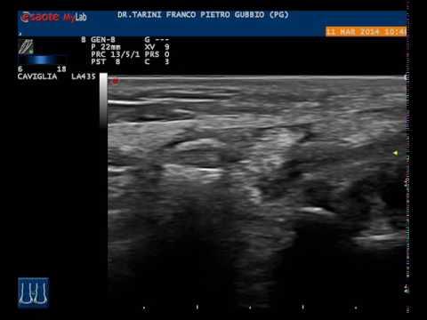 Stabilizzazione dellarticolazione del ginocchio per TPLO