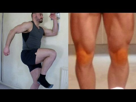 Video How to fix and prevent runners knee
