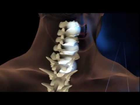 Ob man bei der Osteochondrose sticken kann