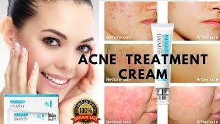 Best Acne Treatment Cream ,Acne Treatment For Men ,Acne Treatment For Teens ,Adult Acne Treatment