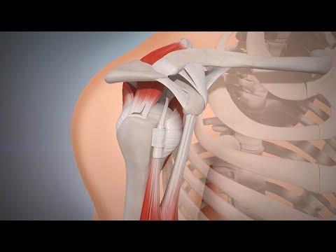 Während Gebärmutterhals-Thorax-Osteochondrose Übungen