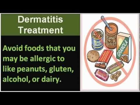 Remédios de gente de eczemas