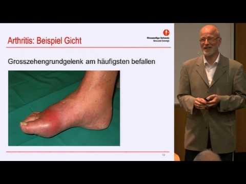 Rückenschmerzen in der Gynäkologie