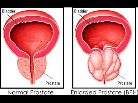 Prostatite cronica abacterial
