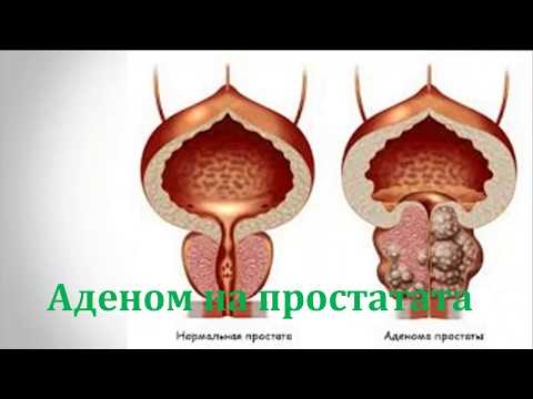 Простатата потъмняване на урината