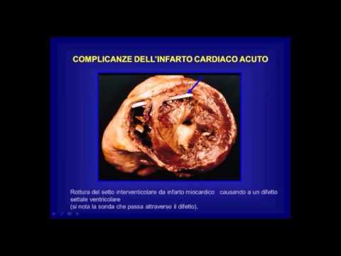 Misuratori della pressione arteriosa forum