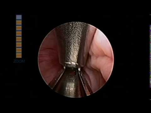 UroLift Implant- Full Procedure