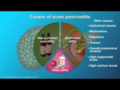 pancreatitis/fmgsindia.com