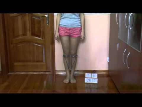 X-ray delle ossa e delle articolazioni degli arti