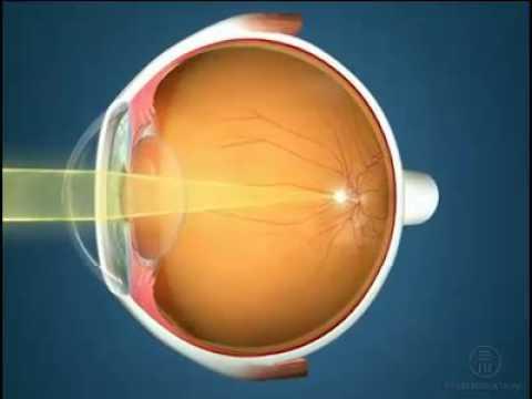 Как узнать зрение на плюс или минус