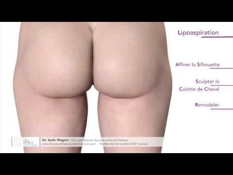 Lipoaspiration ou liposuccion