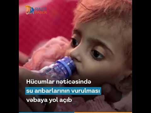 Suudi Arabistan'ın İşgal Ettiği Yemen'de En Büyük Zulmü Çocuklar Görüyor