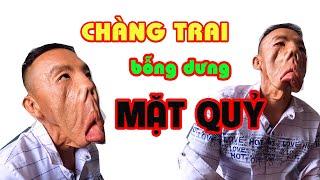 Chàng trai MẶT QUỶ đến nhà Phong Bụi ăn sáng bắt đầu hành trình đi tìm lại khuôn mặt