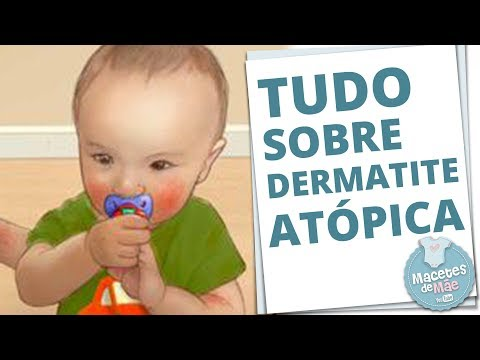 SAÚDE: Dermatite atópica em crianças - inflamação na pele