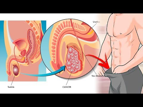 Whether operation is required for prostate cancer