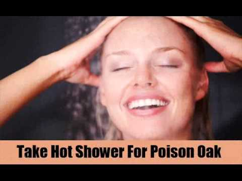 Video Top 7 Home Remedies For Poison Oak