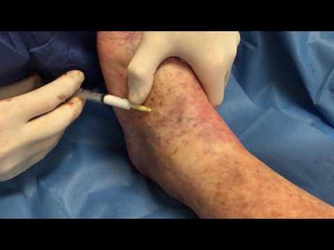 ยิมนาสติกสำหรับเส้นเลือดขอดที่ขา