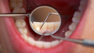 How Many Teeth Should Adults Have?   Tooth Care