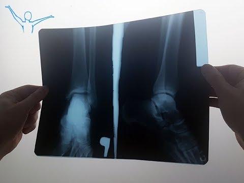 Leczenie osteochondrozy Doctor Butrimov