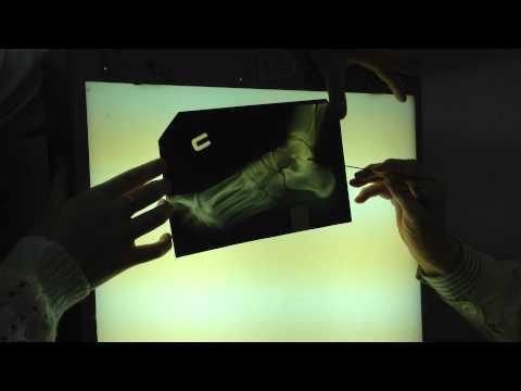 Рентген стопы и голеностопного сустава 2