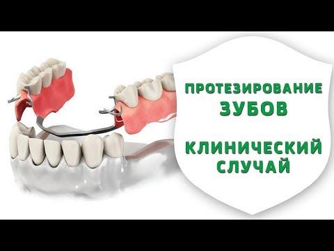Съемное протезирование зубов. Реальная история лечения пациентки | Секреты стоматологии | Дентал ТВ