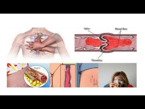 Comme insensibiliser les pieds de la varicosité