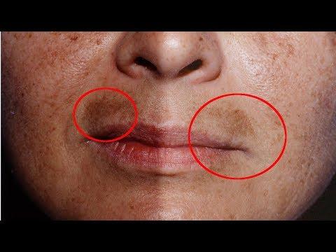 Отбеливающая маска из глины для сухой кожи лица