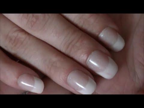 Die Behandlung der Brüchigkeit der Nägel und des Haares