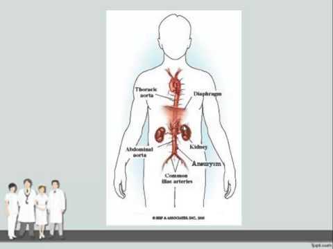 รายละเอียดการรักษา varicosis