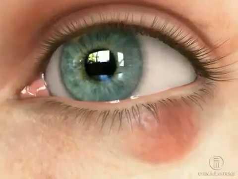 Синие круги под глазами признак какого заболевания