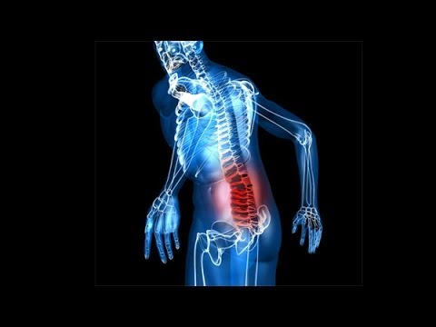 Противовоспалительные препараты при артрозе суставов