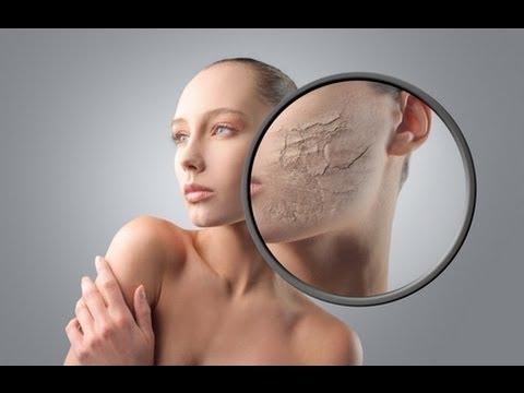 Le masque pour la peau problématique de la personne 3 15 ml