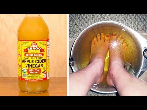 Wie nistatin von gribka der Nägel zu trinken