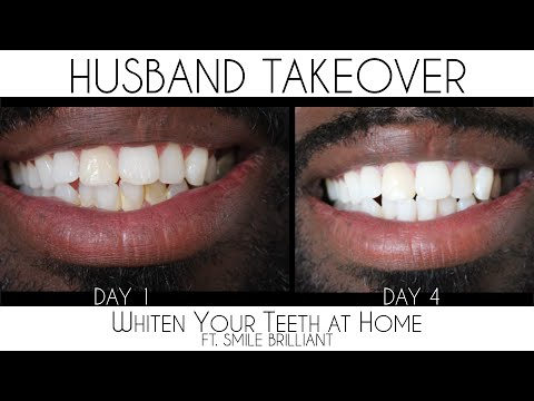 How to Whiten Your Teeth At Home | Smile Brilliant