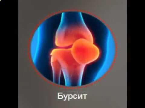 хроническая боль суставов