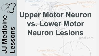 Upper and Lower Motor Neuron Lesions | UMN vs LMN, Differences and Mnemonic