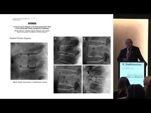 Σταθόπουλος Κ. - Ανίχνευση και σημασία των σπονδυλικών καταγμάτων