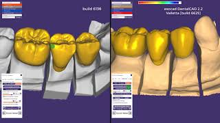 Whats new exocad DentalCAD Valletta build6625