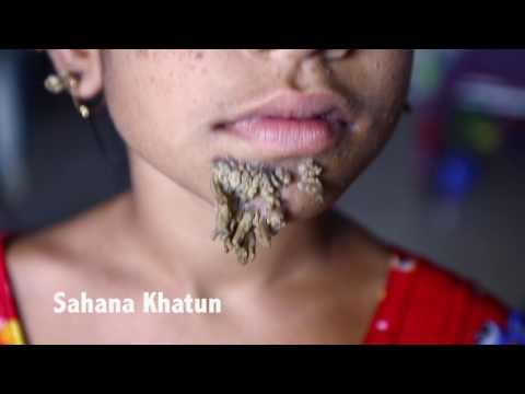 Video Bangladeshi girl could be first female with 'tree man' syndrome