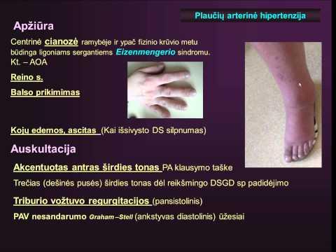 Taikymas hipertoninės fiziologiniu tirpalu gydyti