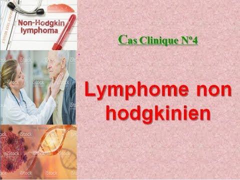 Simptomele bolii giardiozei
