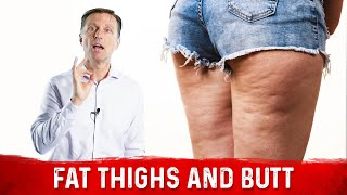Sudden Flabby Thighs and Butt in Menopause and Perimenopause
